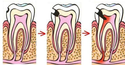 Процесс поражения зуба пульпитом
