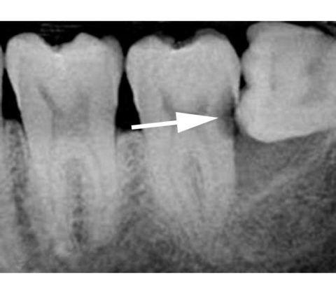 На фоне дистопии 8 зуба, оказывающего компрессию на 7 и действия неблагоприятных факторов возник патологический процесс.