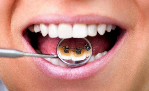 Брекеты – абсолютно безопасны для зубной эмали