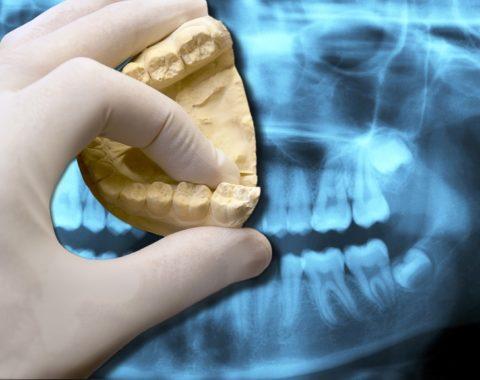 Перед установкой брекетов важно пройти полную диагностику и вылечить зубы в случае их болезни