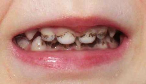 Зубной налет как ключевой фактор развития кариеса