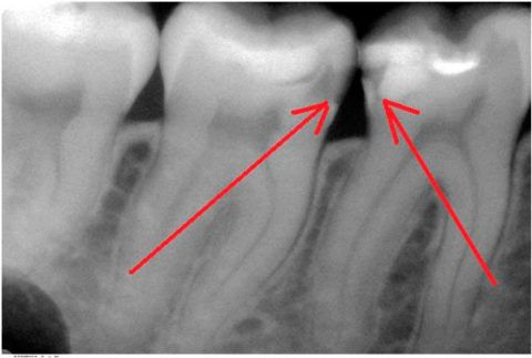 Скрытый кариес на нижних жевательных зубах