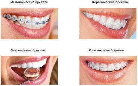 Сравнение разных видов брекет-систем