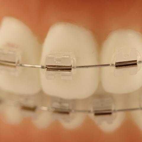 Rocky Mountain Orthodontics Inc. (США)
