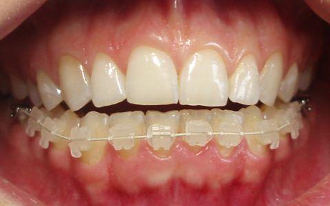 Установка системы на нижний ряд зубов