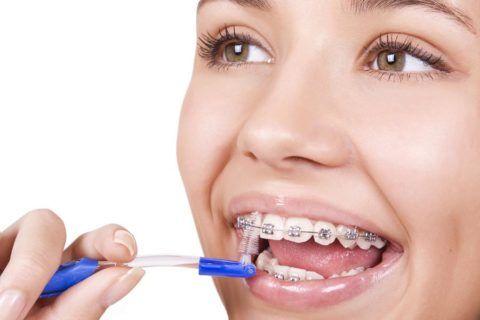 Важно правильно ухаживать за ортодонтической конструкцией