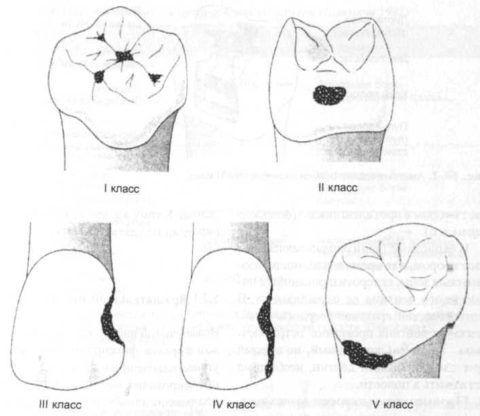 Выделяют несколько вариантов поражения зубов.