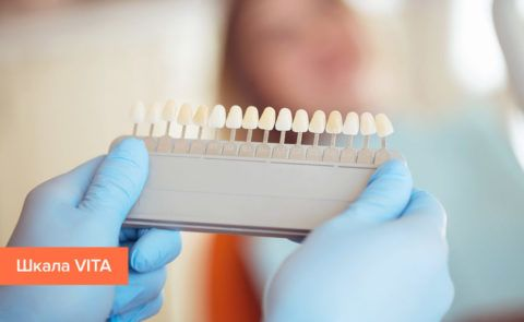 Подбор оттенка зуба перед проведением лечения.