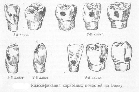 На фото отмечено типичное расположение деминерализации в зависимости от групповой принадлежности зуба и стороны поражения.