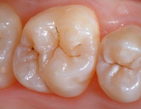 Поражение в зубе естественных углублений.