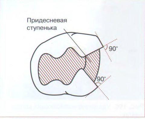 Вид полости со стороны окклюзионной поверхности.