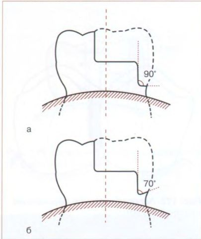 Модификации дополнительных площадок.