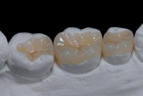 Сформированные композитные пломбы по типу МОД на втором премоляре и первом моляре на гипсовой модели.