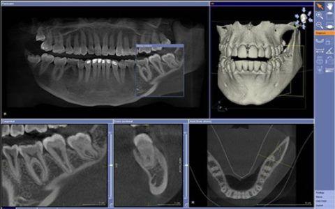Снимки, полученные в ходе компьютерной томографии