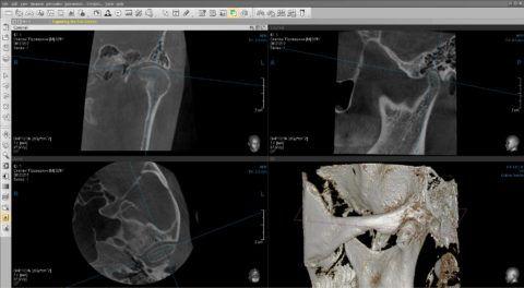 Результаты исследования височно-нижнечелюстного сустава
