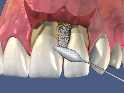 Схематическое изображение лоскутной операции
