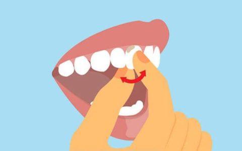 Исследование подвижности зубов