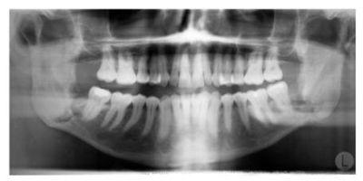 Ортопантомограмма верхней и нижней челюсти