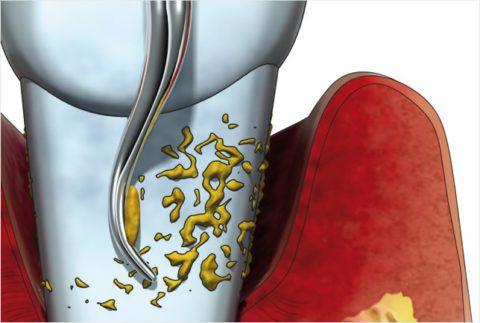 Зубной налет и камень, главные причины развития пародонтита