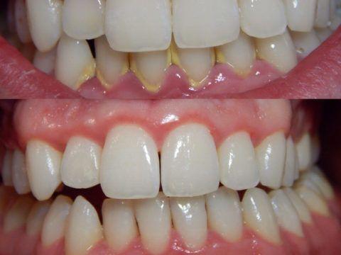 Наличие зубного камня может быть косвенным признаком формирования пародонтоза
