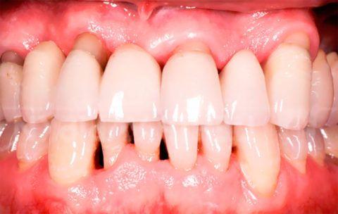 Внешний вид десен и зубов при дистрофии пародонта.