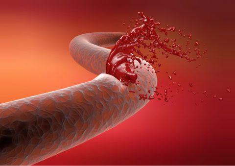 Вестибулопластика не проводится при переданной по наследству гемофилии