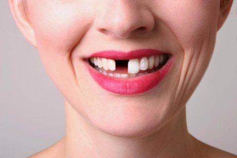 Несвоевременное выпадение зубов