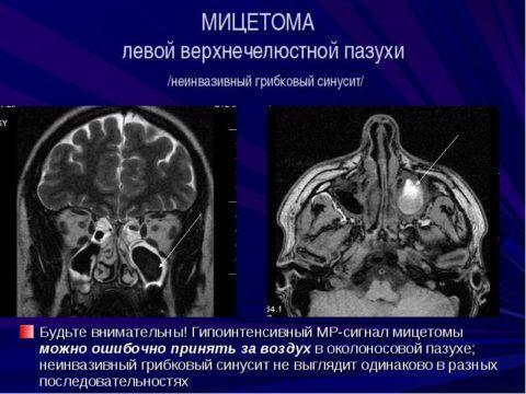 Особенности МРТ-исследования в диагностике мицетомы