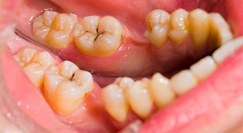 Развитие болезни происходит в несколько стадий.