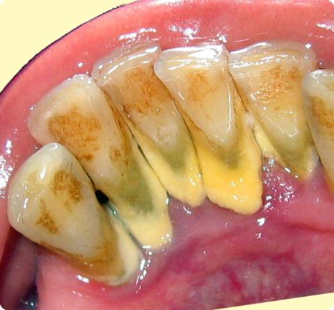 Обильные зубные отложения с лингвальной поверхности