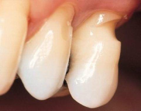 Поражение твердых тканей зуба треугольной формы на фоне механических нагрузок.