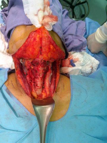 Фото одного из этапов операции на щитовидной железе