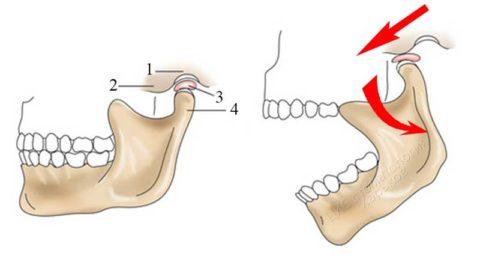 Подвижна только нижняя челюсть
