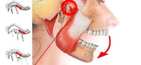 Щелканье в челюсти вызвано проблемой в нижнечелюстном суставе