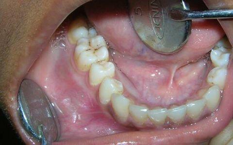 Амелобластома нижней челюсти.