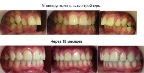 Результат лечения