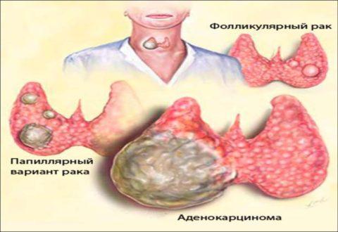 Основные виды рака щитовидной железы