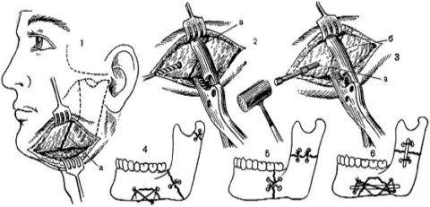 Варианты фиксации скоб на нижней челюсти