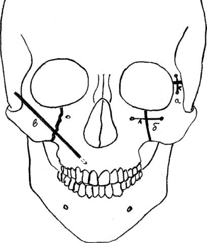 Схематическое изображение фиксации спиц Киршнера