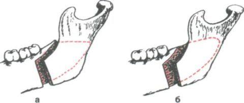 Фото: Остеотомия нижней челюсти