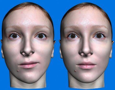 Исправление овала лица с помощью остеотомии