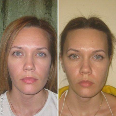 Онемение части лица после операции