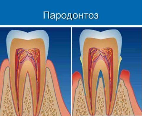 Постепенно десна отходят от зубов