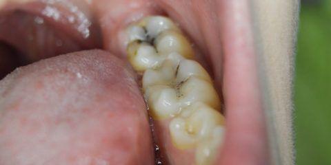 Зубы, пораженные кариесом