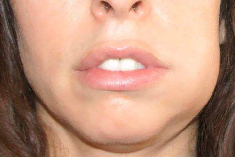 На фото асимметрия лица при воспалении надкостницы на нижней челюсти