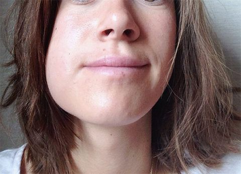 Внешние признаки периостита на нижней челюсти