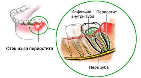 Схема развития периостита на нижней челюсти