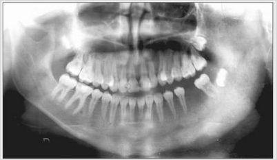 Панорамный снимок больного с хроническим остеомиелитом