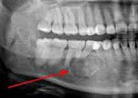 Саркома нижней челюсти