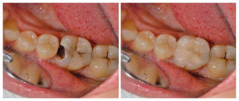 Пульпит нижнего коренного зуба